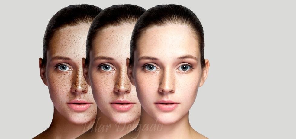 Tipos de manchas faciales y tratamientos de Mesoestetic para eliminarlas